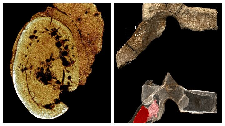 Bones and fossils were analysed to discover the tumour
