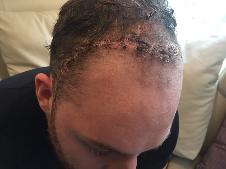 The scar left on Ben's forehead by the surgery