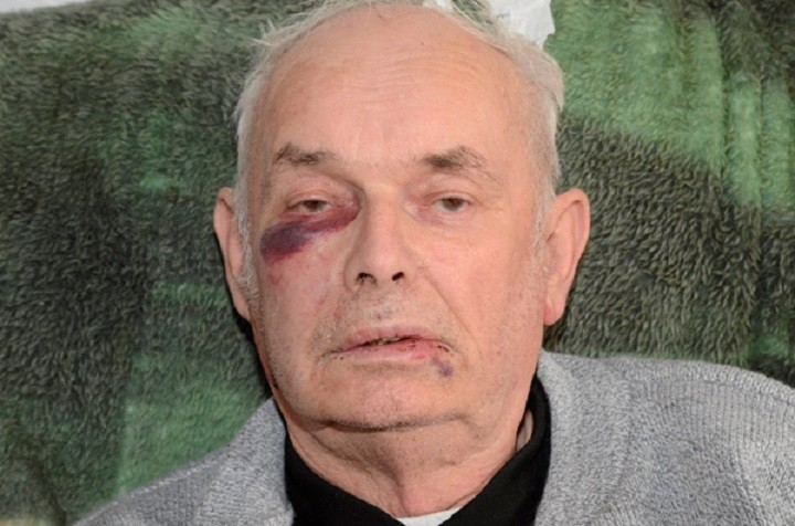 Mr Avery was left with nasty injuries to his face