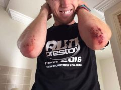 Rob's injuries after the 10k