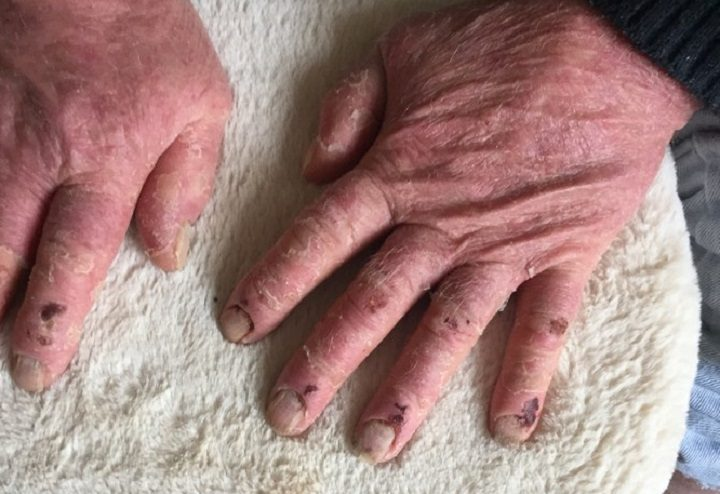 Ian's hands are still very sore after the fall