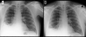 X-rays show the area of his lung affected