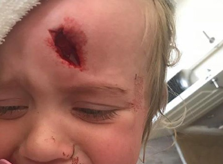 Ava in hospital after the accident Pic: Blog Preston