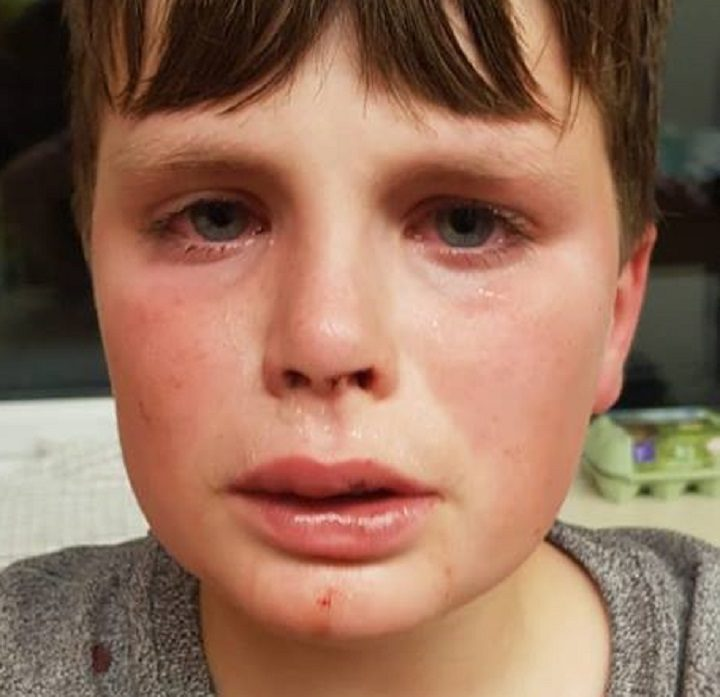 Luca was left bloodied by the attack Pic: Blog Preston