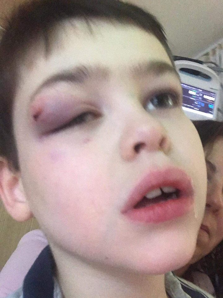 Ben with an injury sustained from one of his drop seizures