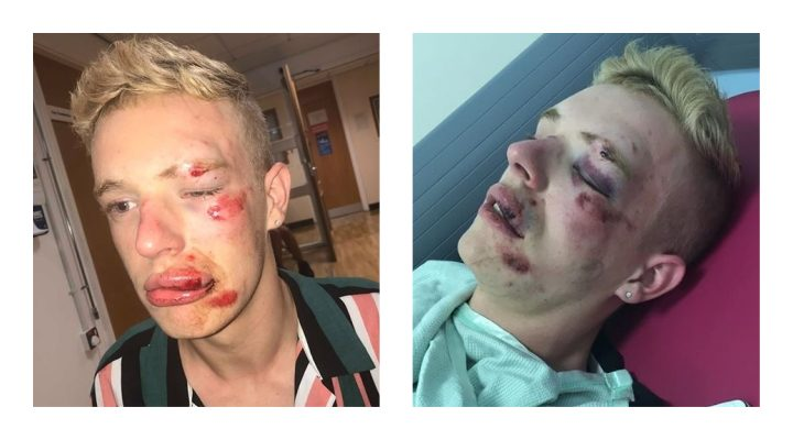 Pictures show the extent of Ryan's injuries Pic: Ryan Williams/Blog Preston
