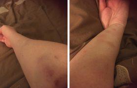 Natalie's bruising