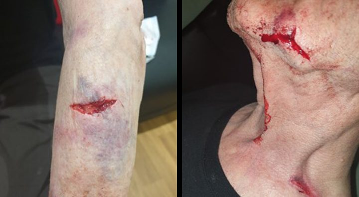 Photos of injuries sustained by the 94-year-old victim